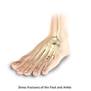 Toe and Forefoot Fractures